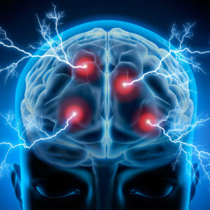 electrical nerve stimulation